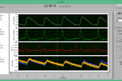LD-BP-R Software interface showing Cuff pressure, ECG and SpO2.